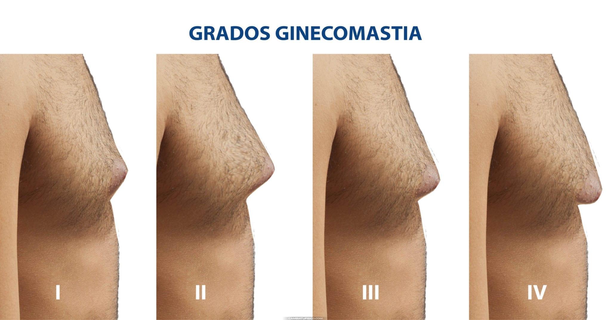 Grados Ginecomastia