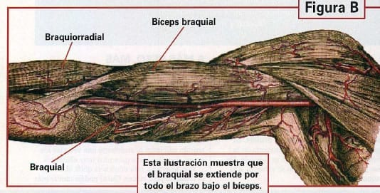 braquial