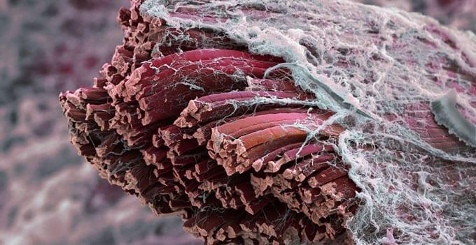 Fibras musculares con microscopio