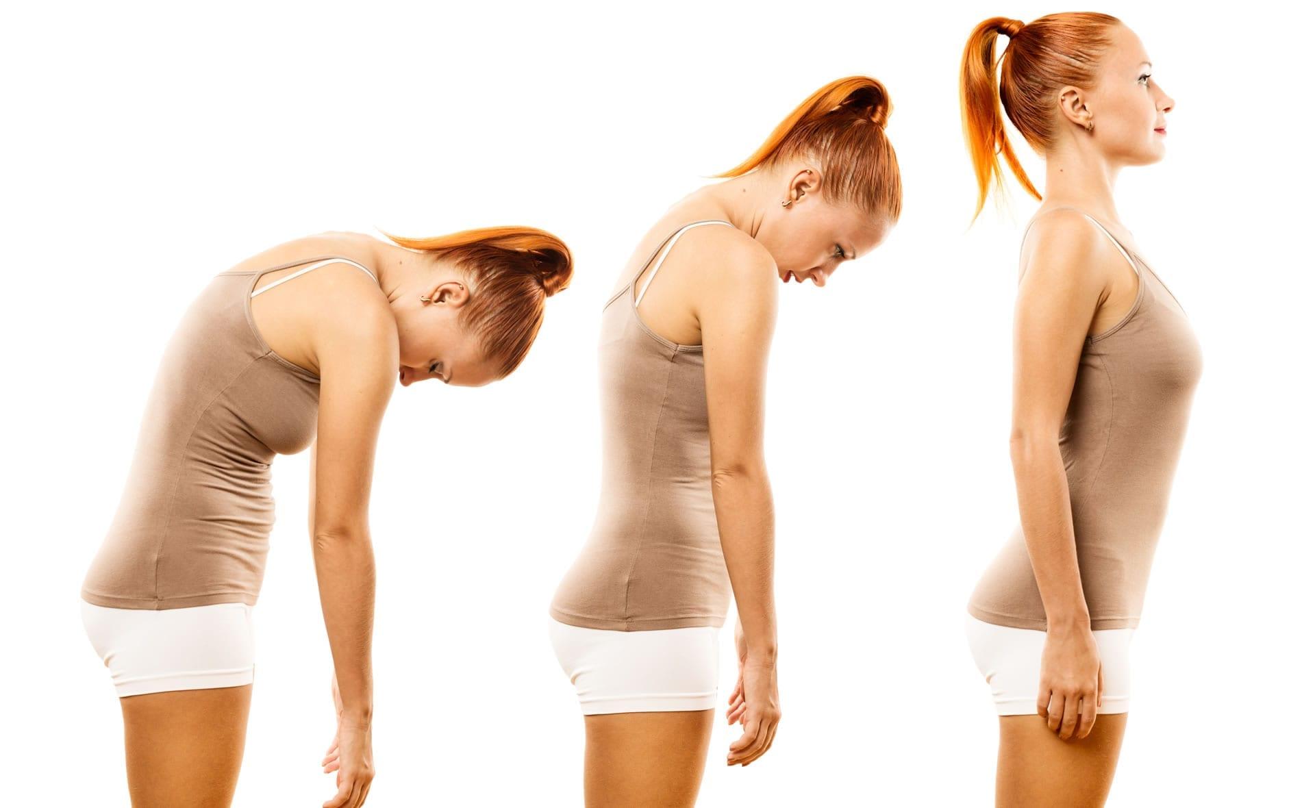 Как исправить сутулость в домашних условиях: упражнения и 18